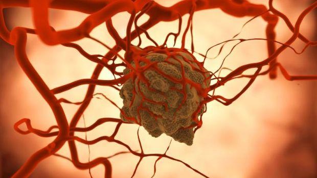 nem metasztatikus rák