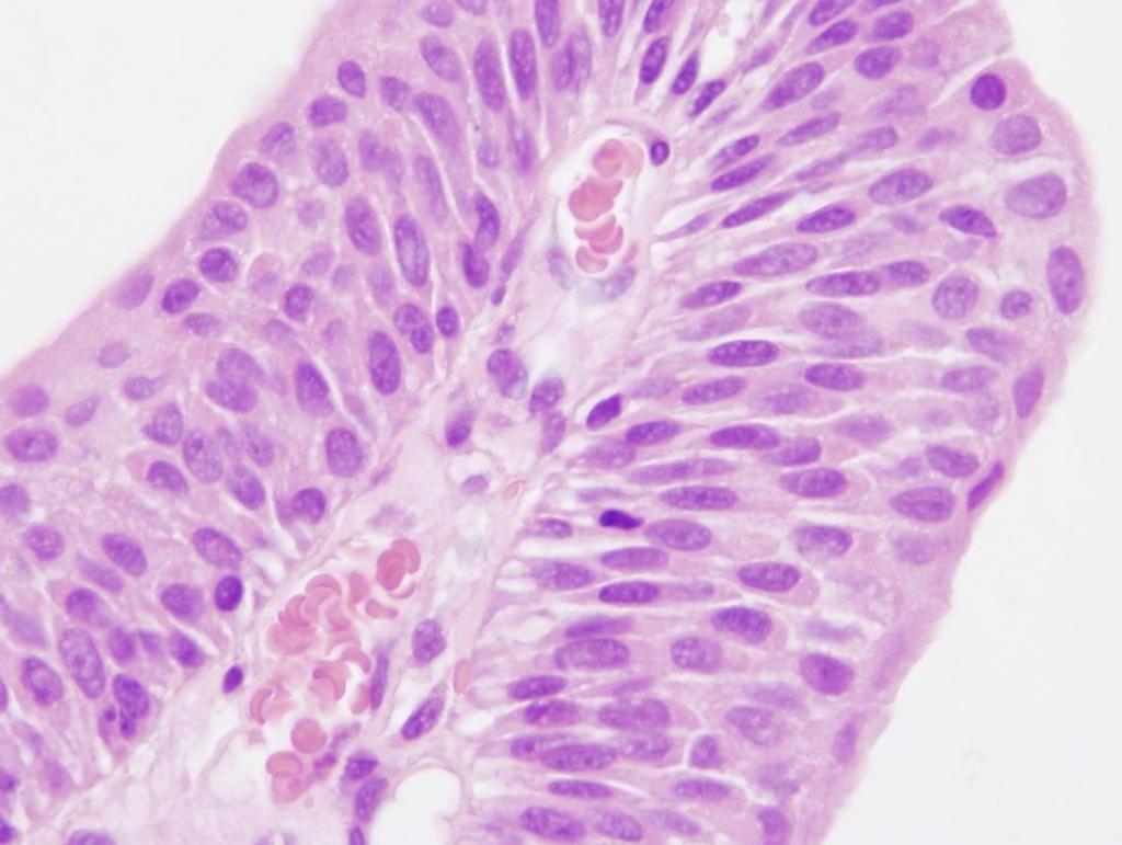 urothelialis papilloma tünetei