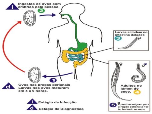 Szégyenbetegség? Nem is gondolnánk, milyen gyakori a cérnagiliszta!, Enterobiosis fertőzés