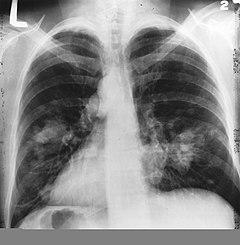 Tüdőrák tünetei és kezelése - HáziPatika