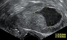 endometrium rák méheltávolítás