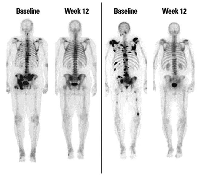 a csont áttétes rákja)