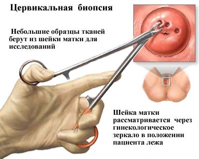 papillomavírus és nyaki rák