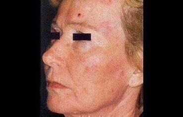 Iszonyatos! Hatalmas lyuk lett a nő arcán, mert heti kétszer ezt csinálta - Blikk Rúzs