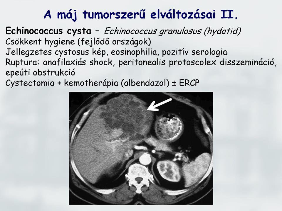 A máj daganata: mi lehet és milyen veszélyes - Lipoma