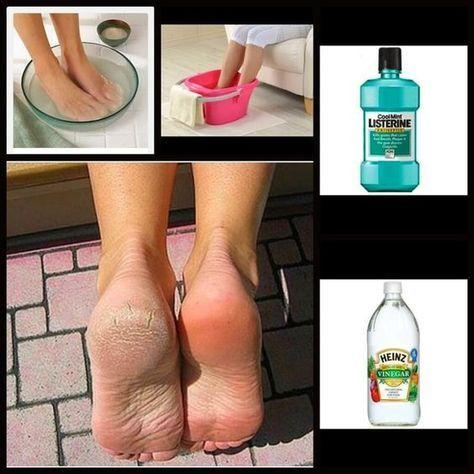 lábfájdalom toxin