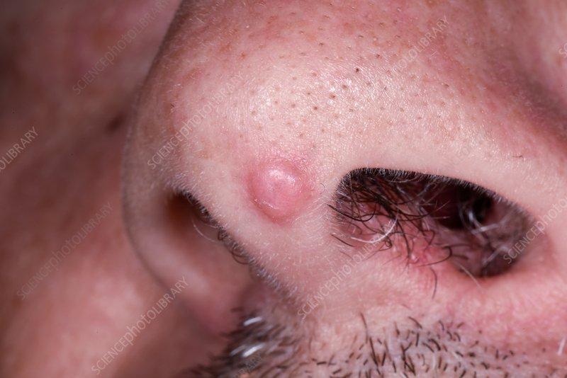 papilloma légzőszervi papillomatosis)
