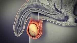 hpv és rák hímek megelőző intézkedések az emberek férgei ellen