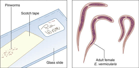 A gyermekekben a pinworm fertőzés jelei