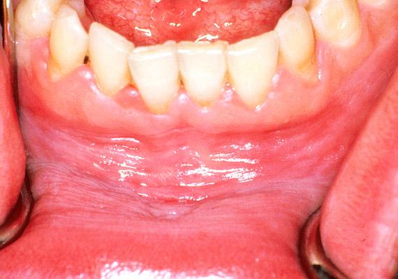a leggyakoribb szájüregi rák