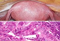 endometrium rák jco