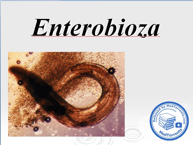 Bélférgesség tünetei és kezelése, Emberi férgek pinworms kezelése