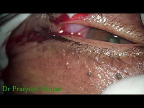 Trichomonas és Ureaplasma kezelés. Trichomoniázis