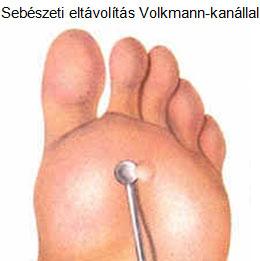 láb szemölcs hólyag)