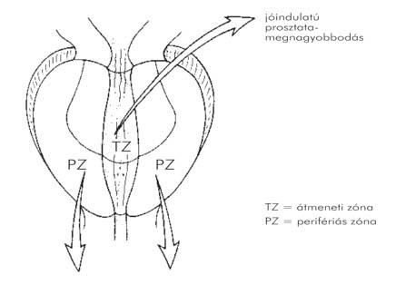 3. fokozatú prosztatarák: gyógyító prognózis - Melanóma