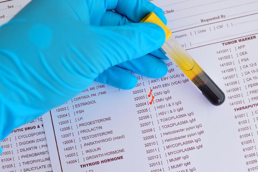 emberi papillomavírus fertőzés kezeletlen