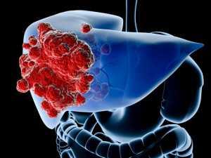 A máj és az epehólyag daganatainak étrendi kezelése | tancsicsmuvelodesihaz.hu