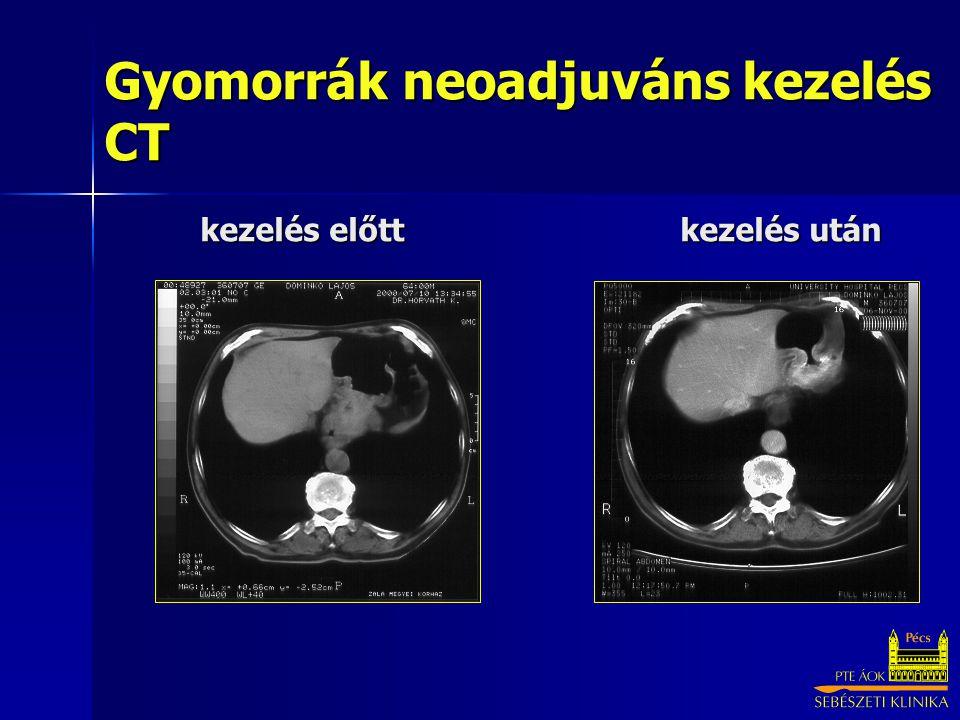 Neoadjuváns, palliatív kemoterápia, immunterápia - Onkológiai fogalomtár