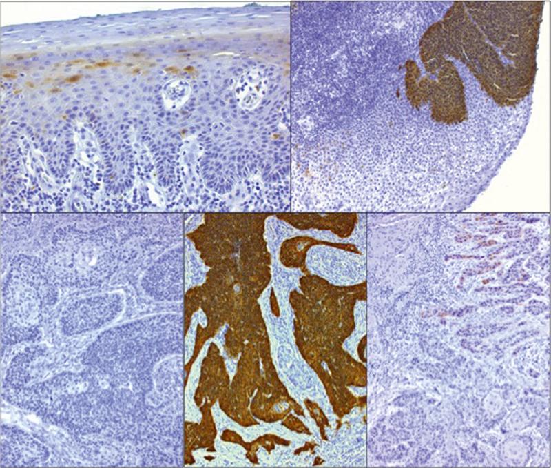 papillomavírus gebarmutterhals)