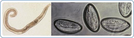 enterobius vermicularis királyság pinworm a punciban