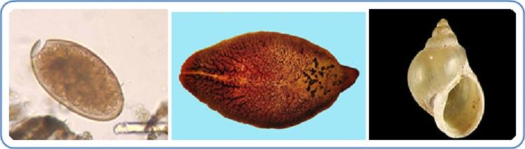 fascioliasis az)
