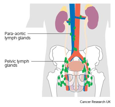 peritoneális rák nyirokcsomók