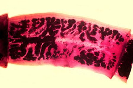 situs parazita teniosis