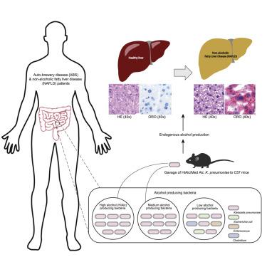 Klebsiella pneumoniae baktériumok: tünetek és kezelés - Köhögés