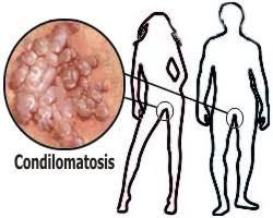Férfiaknak – HPV-Centrum