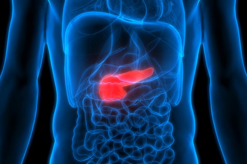 A cukorbetegség és a hasnyálmirigy-daganat kapcsolata