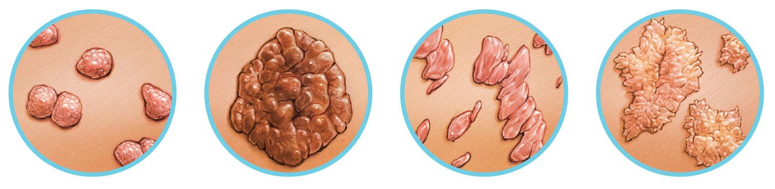 hpv szemölcsök alacsony kockázatú condyloma acuminata je