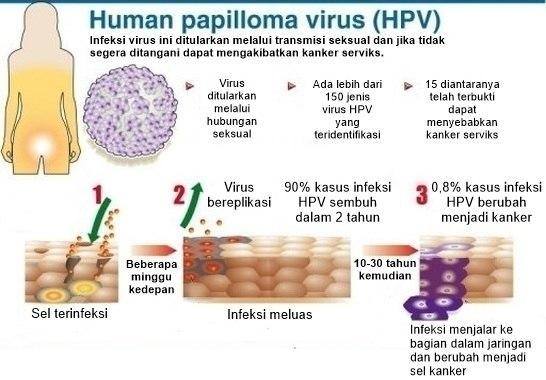 humán papilloma vírus penyebab kanker serviks