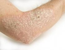 HPV-szűrés és tipizálás - tancsicsmuvelodesihaz.hu