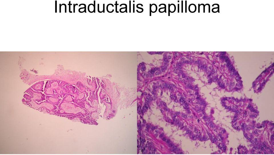 mi a genitális szemölcsök elektrokoagulációja a paraziták újbóli kezelése