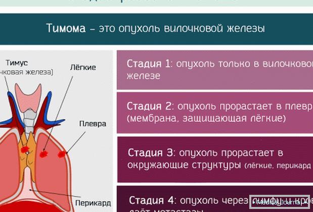 neuroendokrin rák thymus)