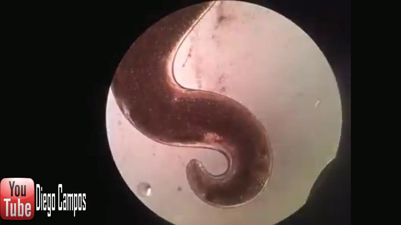 nikvorm vagy wormex