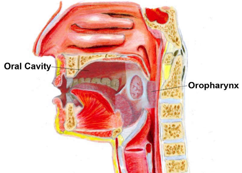 Légzési papillomatosis szövettana. A gége jóindulatú daganatai