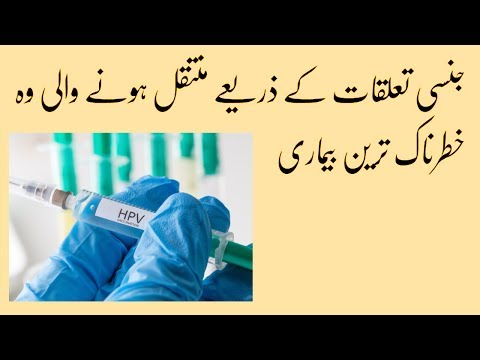 papilloma jelentése urdu nyelven)