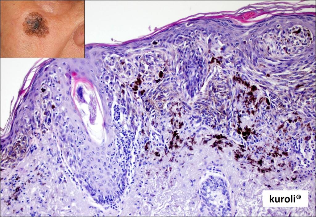 papilloma bőr patológia - Krém papillómákhoz
