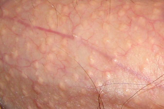 A HPV-fertőzés tünetei nőkben és férfiakban - Medicover