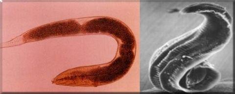 Ahol a pinworms tojásait tojják Parazita spray