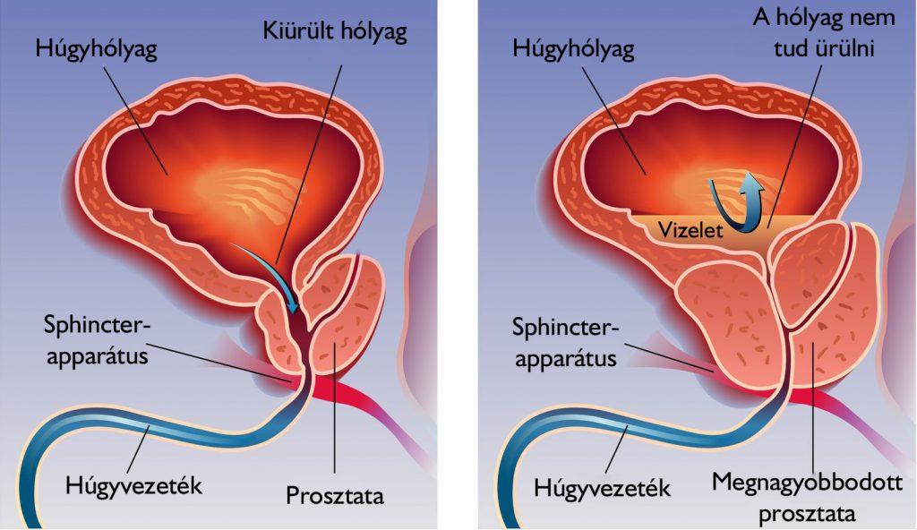 Az egész test hatékony kezelése az összes parazitától