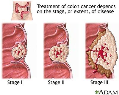 rectosigmoid rák tünetei)