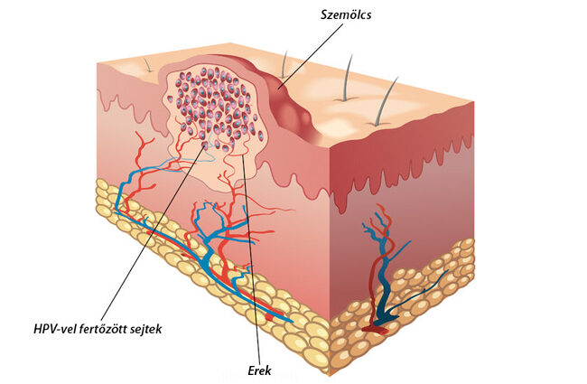 gége pikkelyes papilloma patológia