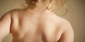 táplálék szemölcsök papillomavírus vakcina 40 éves férfi
