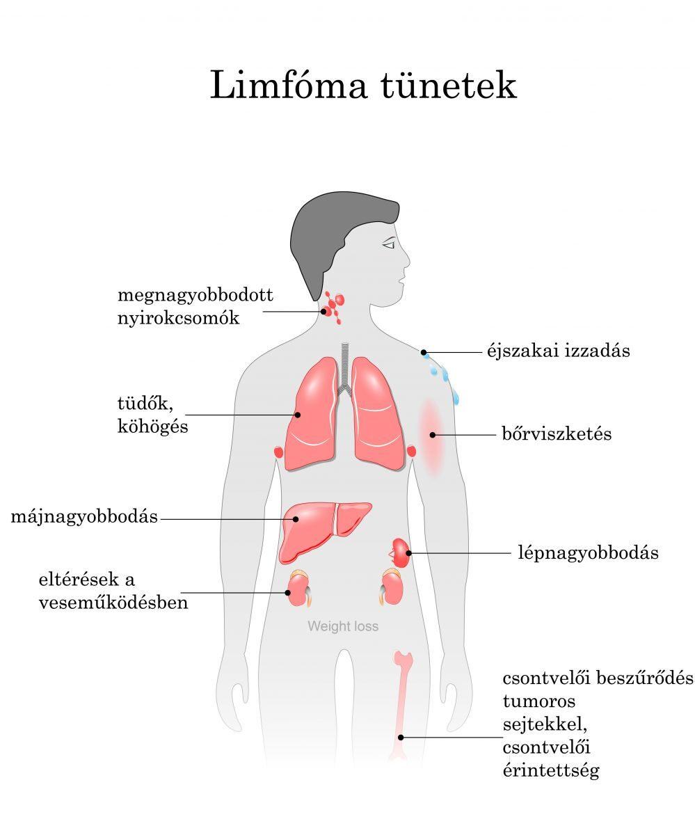 Nyirokcsomó megnagyobbodás - Trombózis- és Hematológiai Központ