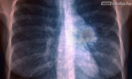 tüdőrák áttét