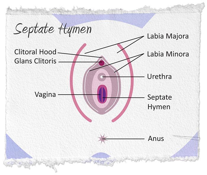 vulvar condylomát okoz a férgek fertőzőek vagy sem