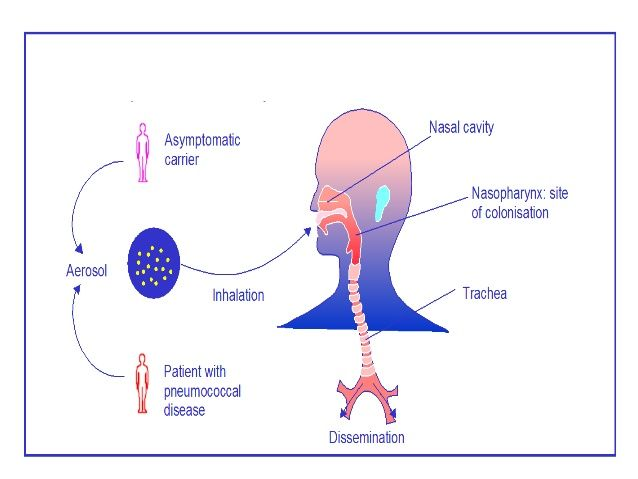 hodgkin rák okozza