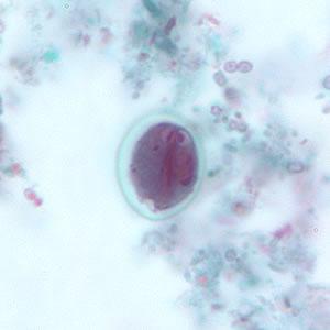 Giardia em humanos